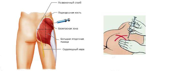 تزریقات عضلانی