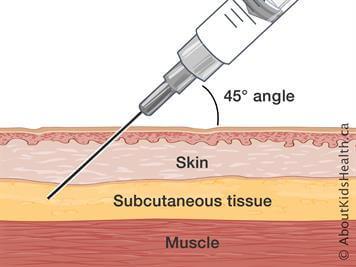 تزریق زیر جلدی، تزریق زیر جلدی در منزل - تزریقات در منزل