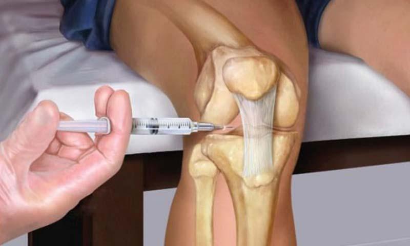 تزریق داخل مفصلی